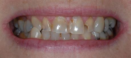 blekning av tänder med bikarbonat