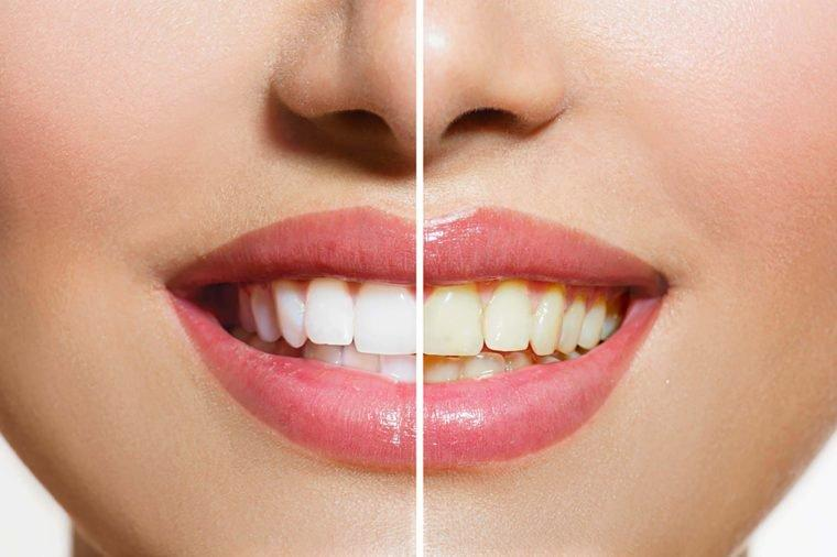 teeth whitening powders