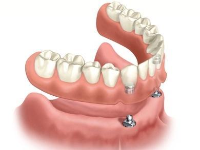 veneers cost,Porcelain veneers,dental veneers,veneer teeth,teeth veneers,how much do veneers cost, <a href=''/><br />In addition to conventional porcelain veneers, we also provide DURAthin® prepless veneers, an improvement more than LUMINEERS® prepless veneers. Based on the sort of veneer you pick, you may possibly need to make many visits to the dentist prior to your veneers are complete.<img class=