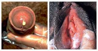 kencing nanah atau gonore