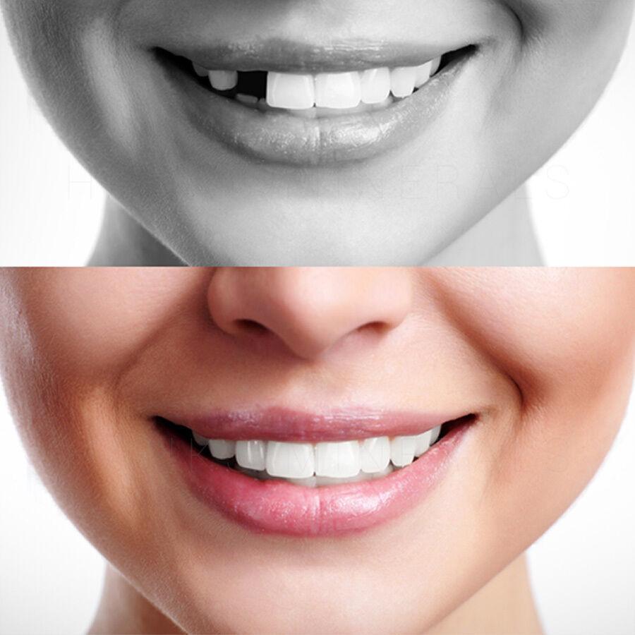 foto de dientes podridos