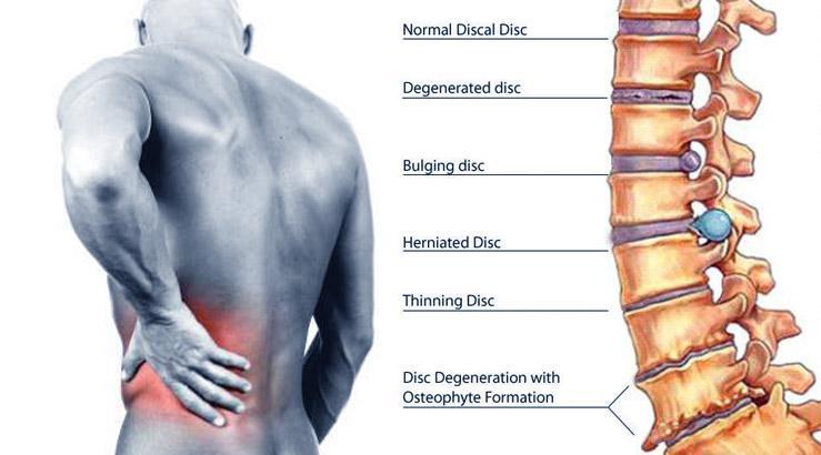 back_pain_treatment-610.jpg