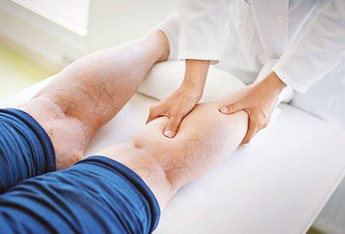 Varicose Veins Treatments, Causes, Pain Relief, Surgery & Removal