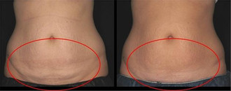 coolsculpting5.jpg