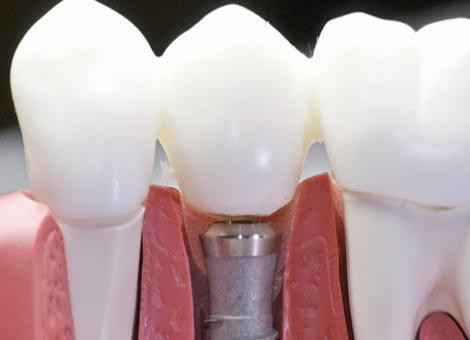 dental_implants2.jpg
