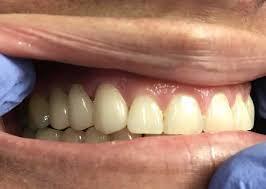 dentalbrrdge.jpg