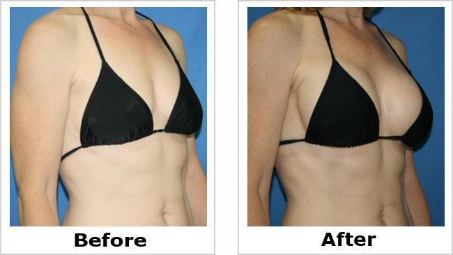 breastaugmentationbeforeafter.jpg