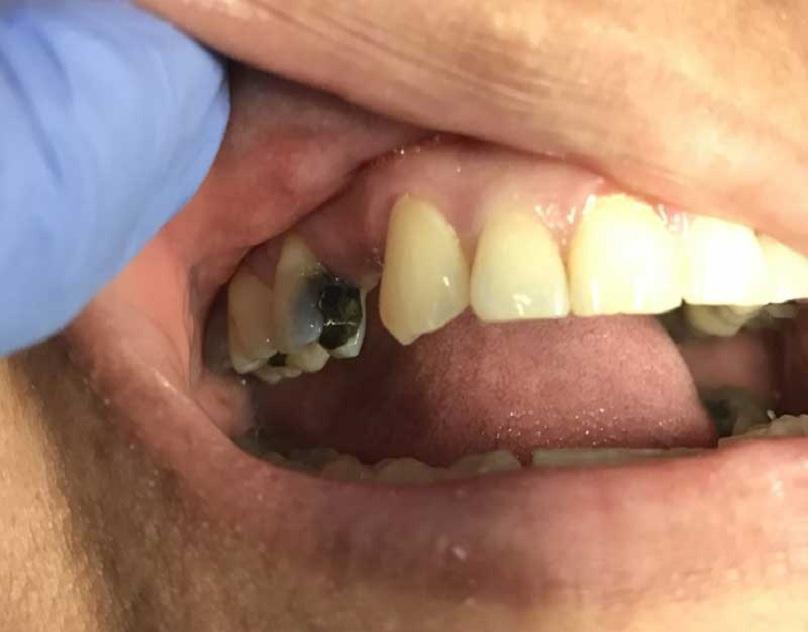 dentalbridge77002before.jpg