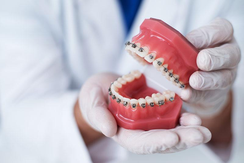 orthodontistholdingteethmodelwithbraces.jpg