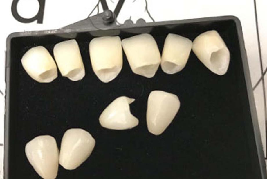 dentalbridgesprocedure.jpg