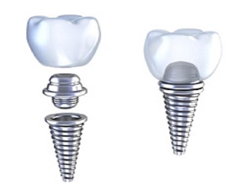 dentalimplantdiagrambeingattachedtogether.jpg