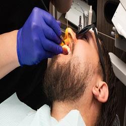 dentalbondingin77027.jpg