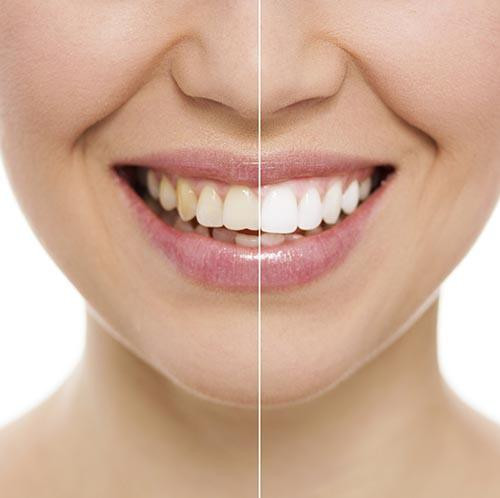 teethwhiteninghalfwhitesmile500px.jpg