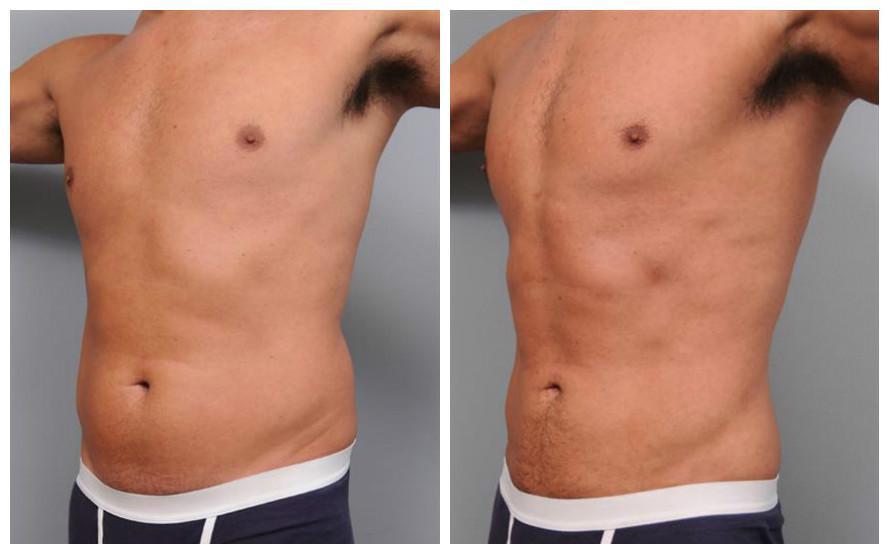 abdominalliposuction.jpg