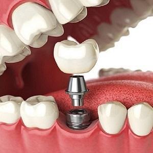 implantsillus.jpg