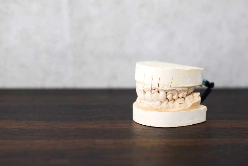 dentalbridgenearme77002.jpg