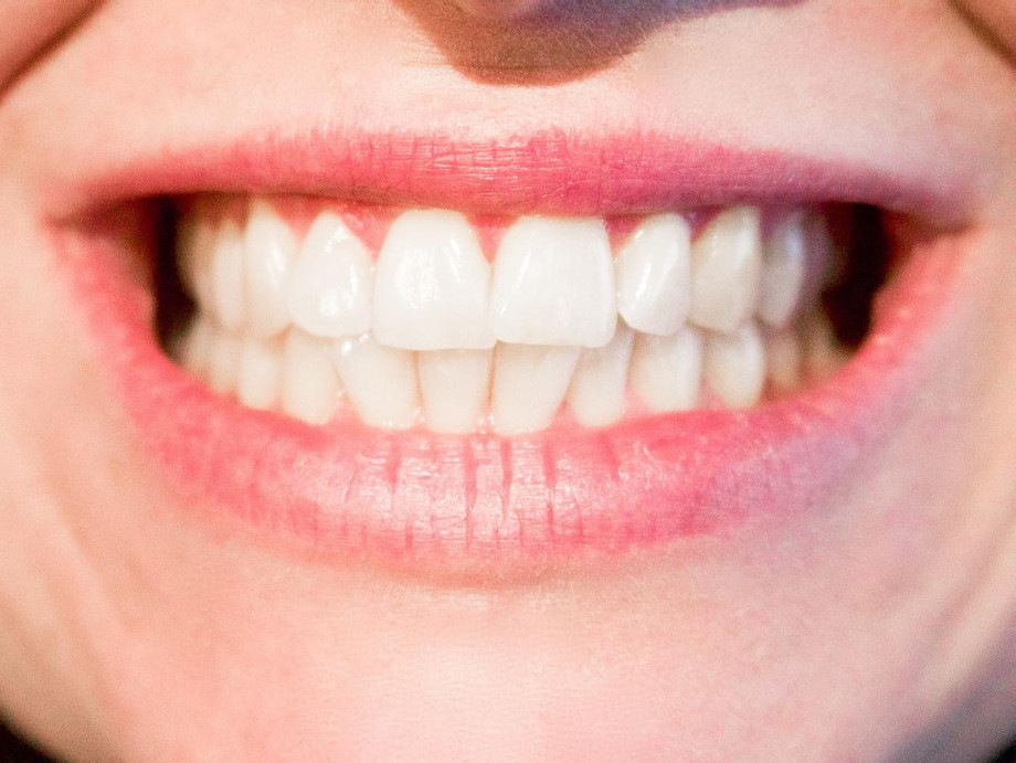 teethwhiteninghouston1.jpg