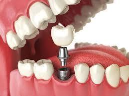 dentalimplants.jpg