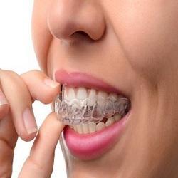 mouthguard.jpg